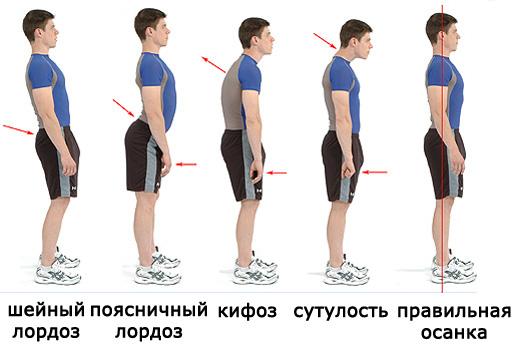 Правильная осанка. Упражнения для осанки Твой Фитнес